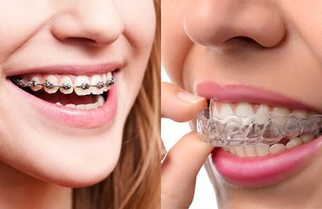 Local Braces Chat, Orthodontics Treatment Discussion & Online Invisalign Blog