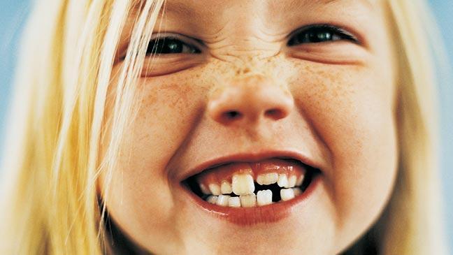 Children Teeth Information, Teething Blog, Kid Orthodontics, third molars question, clear aligner question, clear aligners question, clear aligner questions