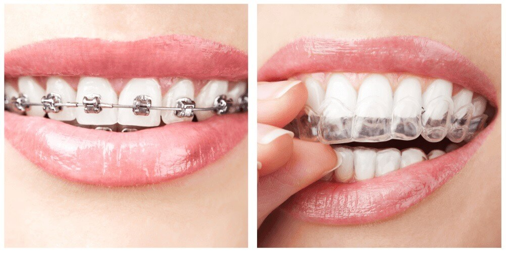 Clear Aligners Information, Orthodontic Braces Info