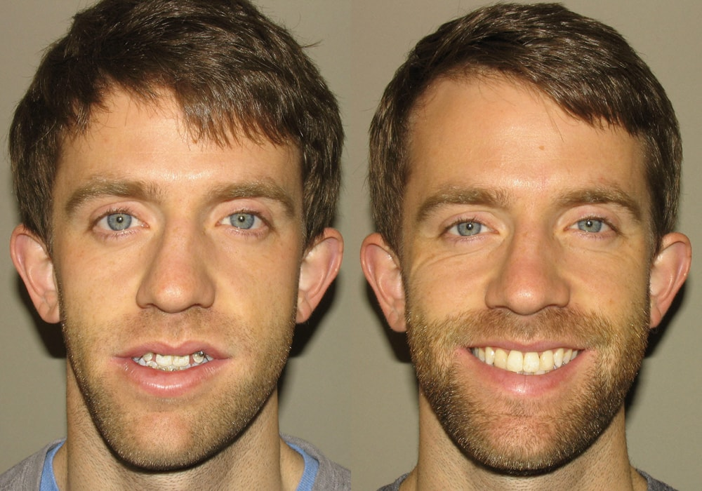 Oral surgery blogging about orthognathic corrective jaw surgery