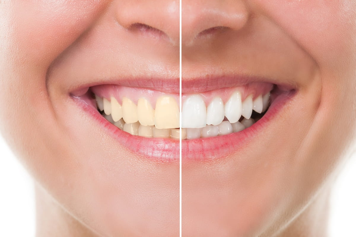 Best cosmetic dentistry information blog, local cosmetic dentist question chat, online cosmetic dental care info questions blogging