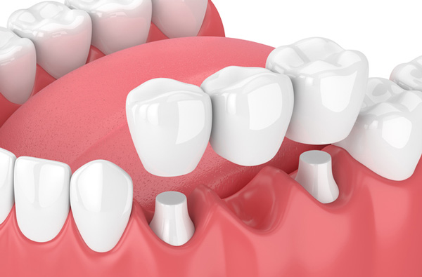 Just Dental about Cosmetic Dentistry Treatment, Dental Crowns Blogging Online, and Dental Veneers Blog