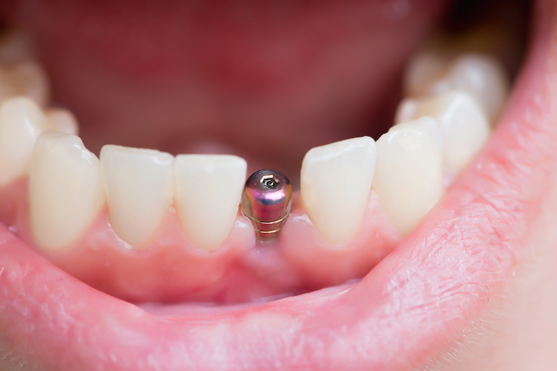 Dental Emergency Blogging, free dental consult and local urgent tele dentistry consulting