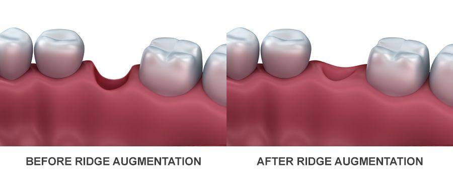 Dental Bone Grafting Blogging, Dental Ridge Augmentation Chat, Dental Bone Graft Chatting