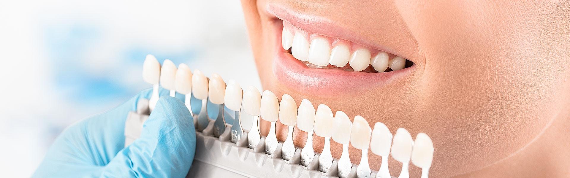 Dental Veneer Info Blog, Local dental veneers question answers online