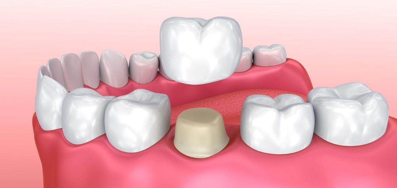 Dental Crowns Placement Question Chat, Teledental Dental Crown Information