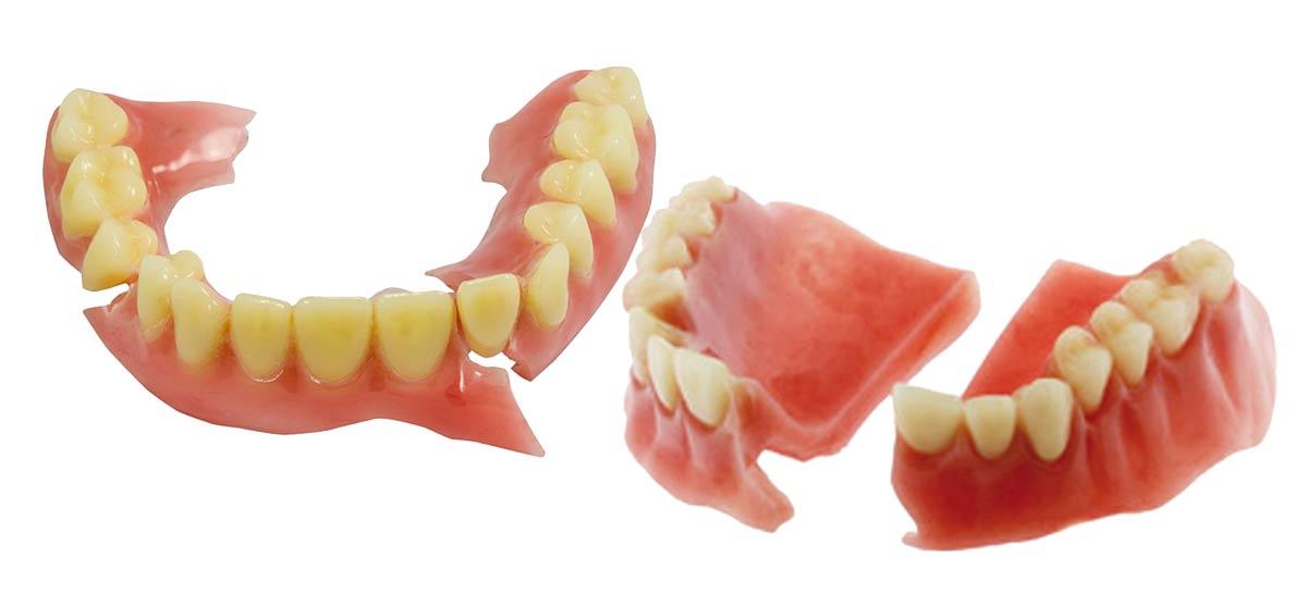 Denture Repair Chat, Full Dentures Repair Blog and Denture Relining Blogging