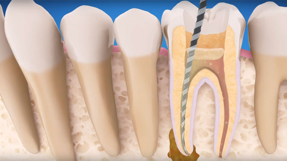 Local endodontist blog and ask root canal questions online