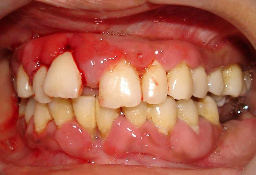 Gingivitis Chat Online,  Periodontal Gum Disease Blog, Dental Gingivitis Questions and Online Oral Hygiene Chat