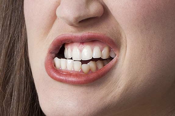 Teeth Grinding Problem Chatting, Online Bruxism Chat, Bruxism Treatment Blog