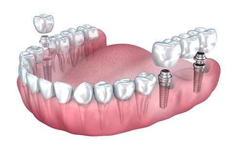 Best dental implants placement information