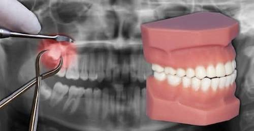 Local Dental Problems Blog, Online Dental Problem Blogging & Dentists Treatment Solutions Chat