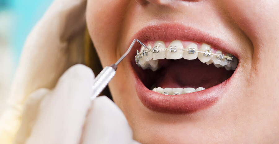 Online Orthodontics Blogging, Local Orthodontists Dental Specialty Chat