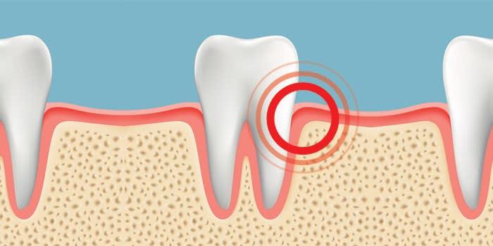 Bleeding gum problems blog, asking gum problem questions online,