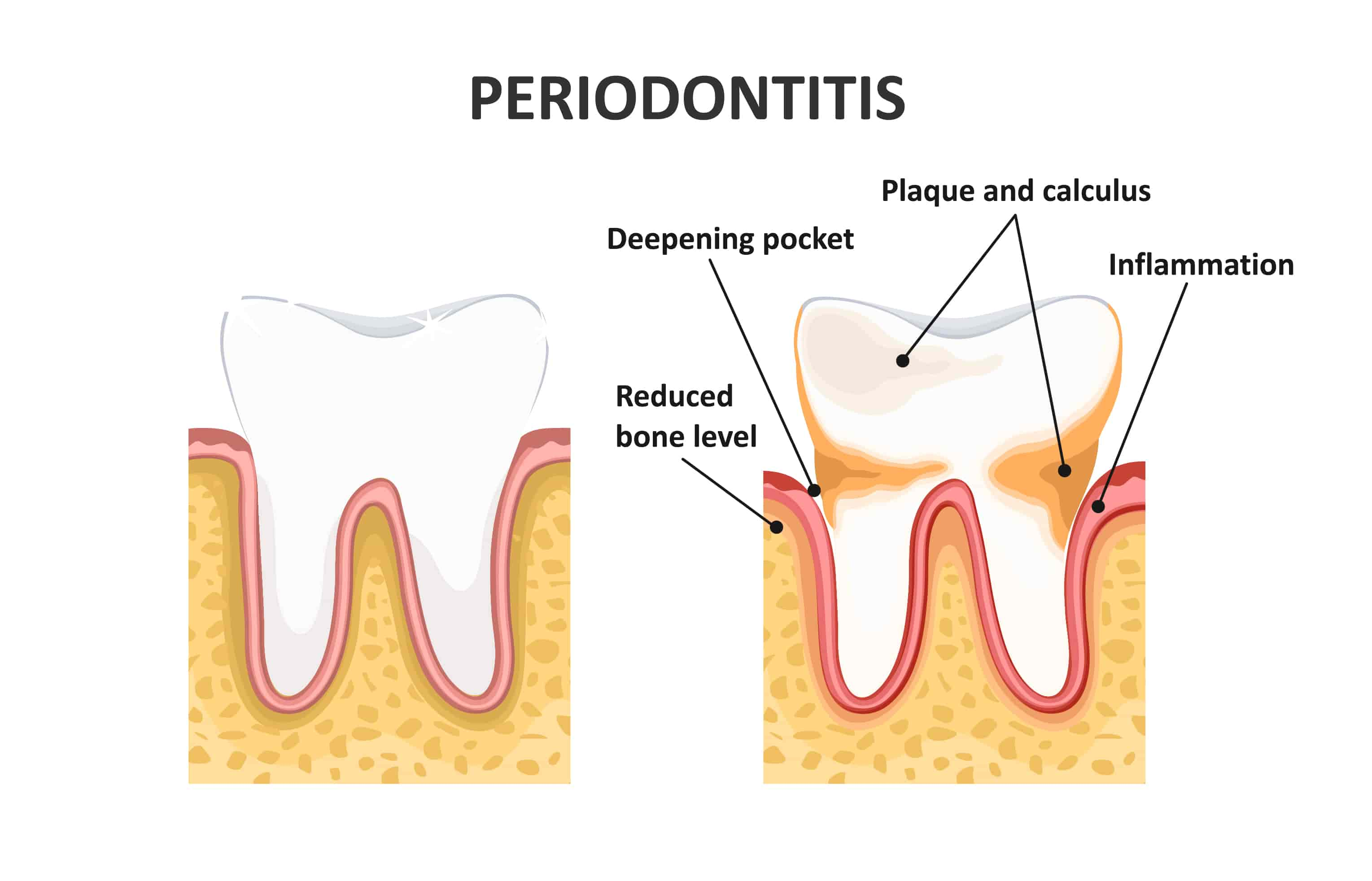 Periodontitis Chatting, Perio Treatment Chat, Local Periodontist Blog, Online Periodontitis Discussion: