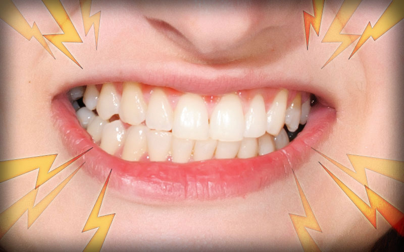 Online bruxism questions blog, online teeth grinding chat