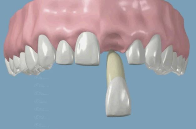 Tooth knocked out by accident Avulsed tooth problem chat