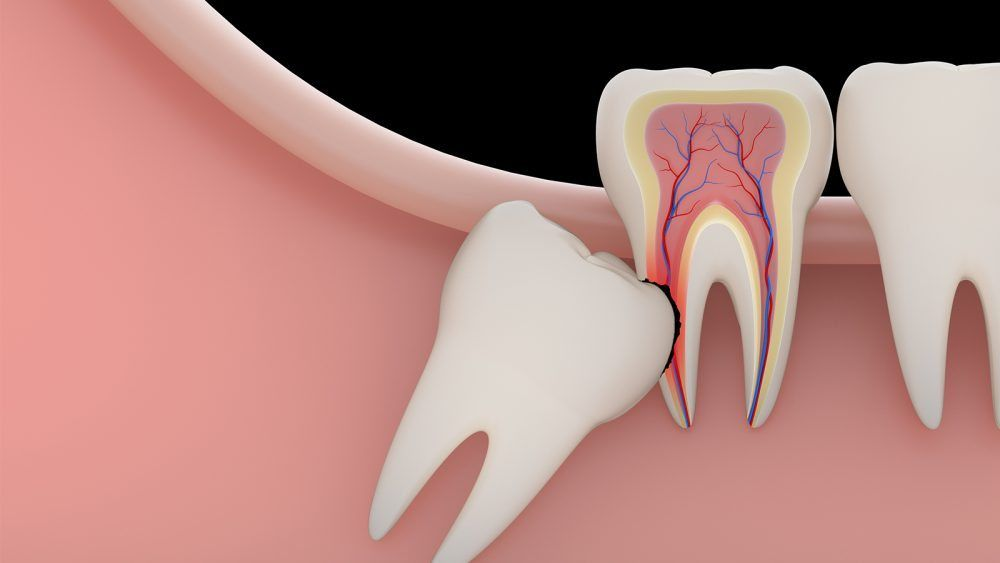 Best tooth pain question chatting, local tooth decay questions chat