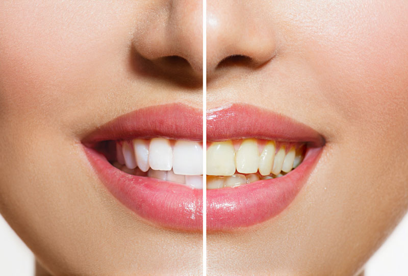 Cosmetic Dental Care Tooth Whitening Teledentistry Blog, Teeth Whitening Question Information Chat