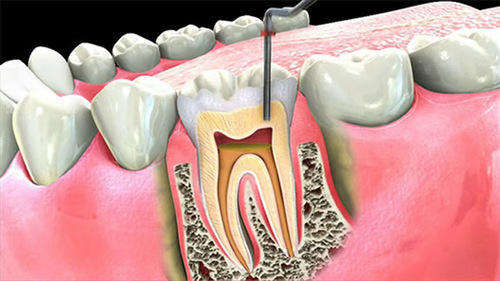 root canal cost and root canals treatment price question online