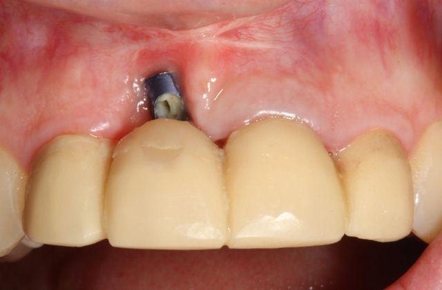 Dental Implants Info Blog, Local Dental Implant Question Information Blogging