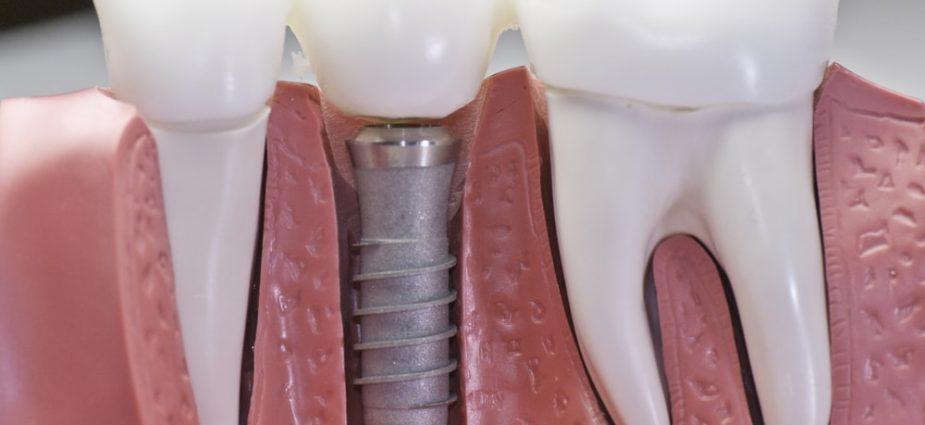 Why dental implants sometimes fail, Local Dental Implant Blog