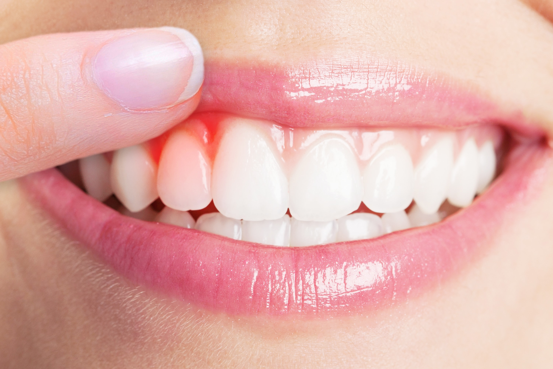 Periodontics chatting, perio treatment chat, local periodontist blog