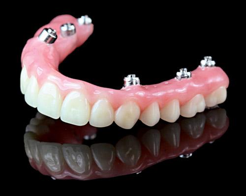 Dental Implants Denture Blog, Full Dentures Chat, Partial Denture Question Blog