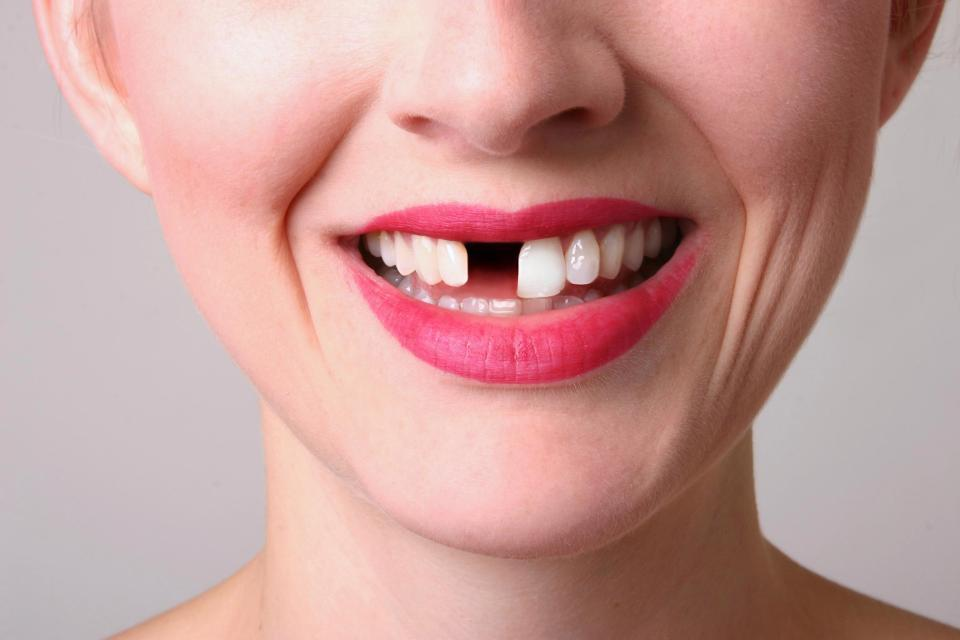 Local tooth loss blog, online dental bridges chat and local dental implants blogging online