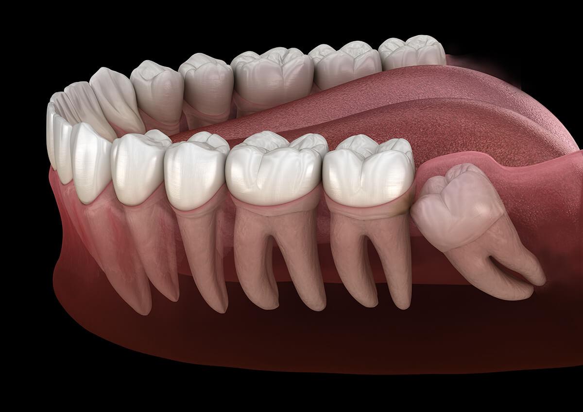Wisdom Tooth Info, Wisdom Teeth Eruption Chat, Wisdom Tooth Extraction Blog, Wisdom Teeth Information Chatting Online, Third Molars Blog