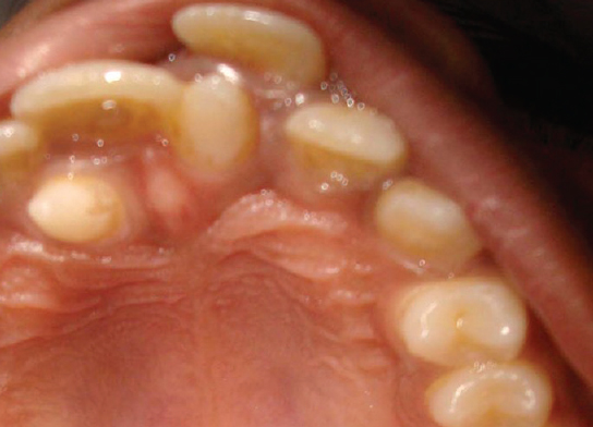 Supernumerary Tooth Chat