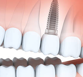 online dental implants question chat