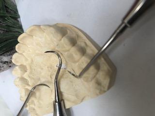 online dental emergency question