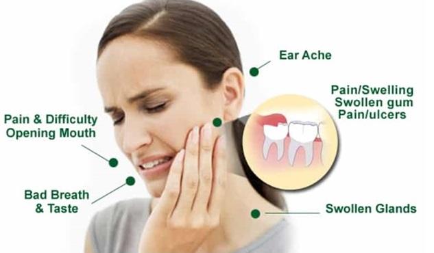 wisdom teeth blog, third molar chat