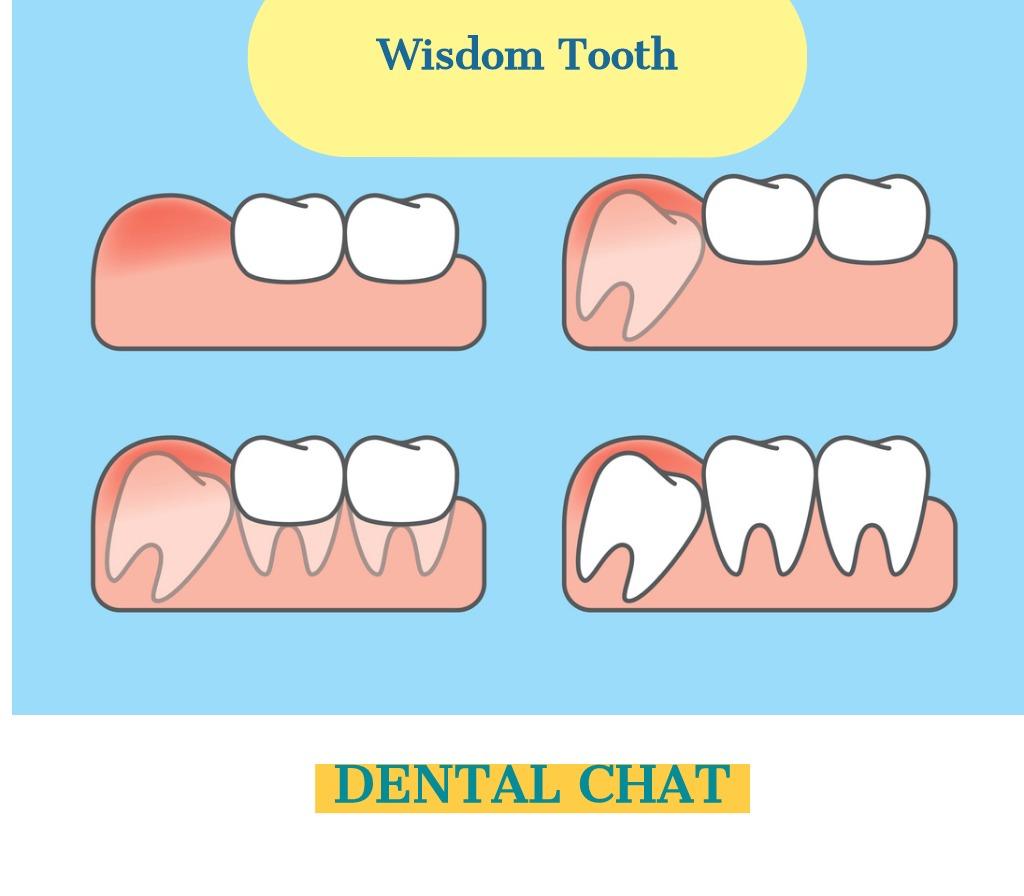 Wisdom Teeth Question Blog