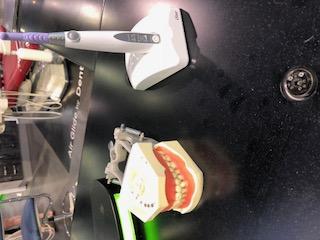 Local Dentures Blog, Partial Denture Blogging