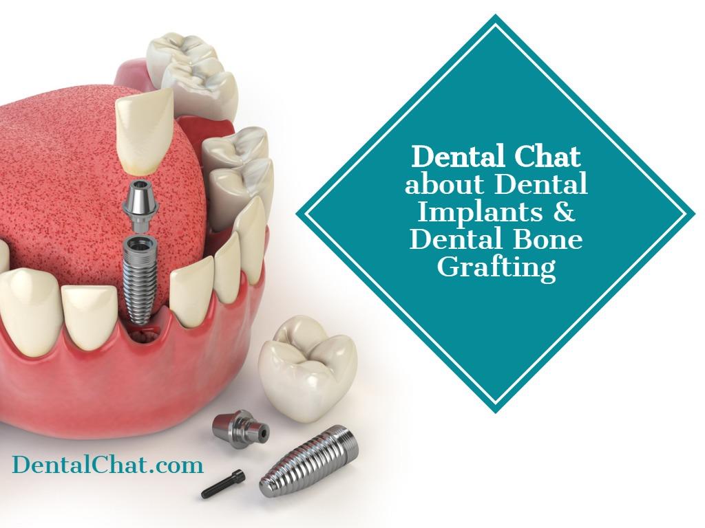 Local Dental Implant Teledentist Dentist Implants Online