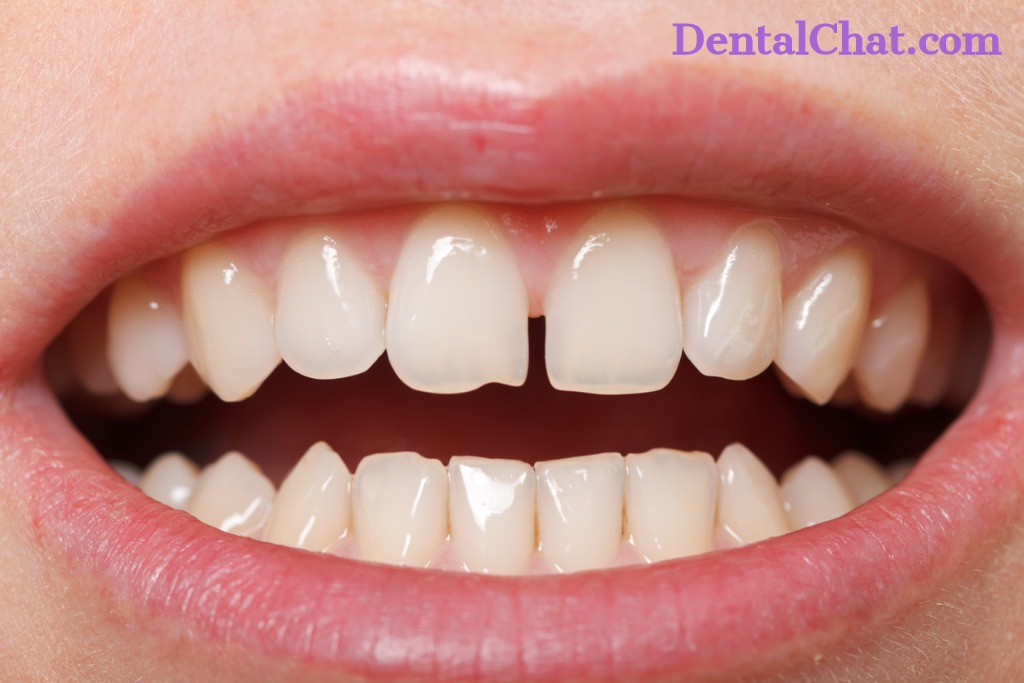 Live Teledentist Consult about Tooth Chipping Problem